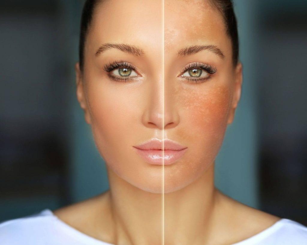 femme avec visage avant et après soleil : avec un masque de grossesse, des taches brunes couvrent son front et ses joues